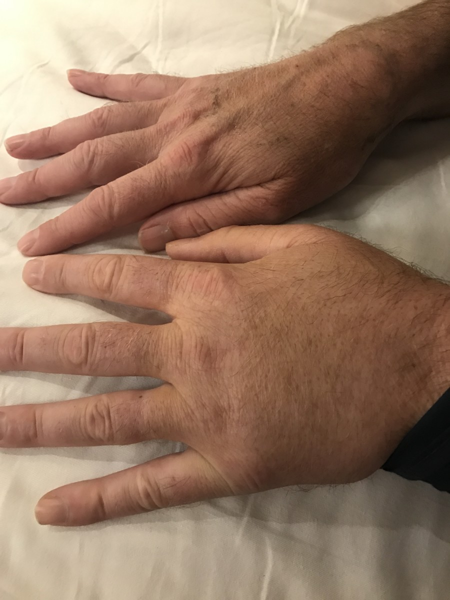 Comparing the swelling in hand after humerus surgery