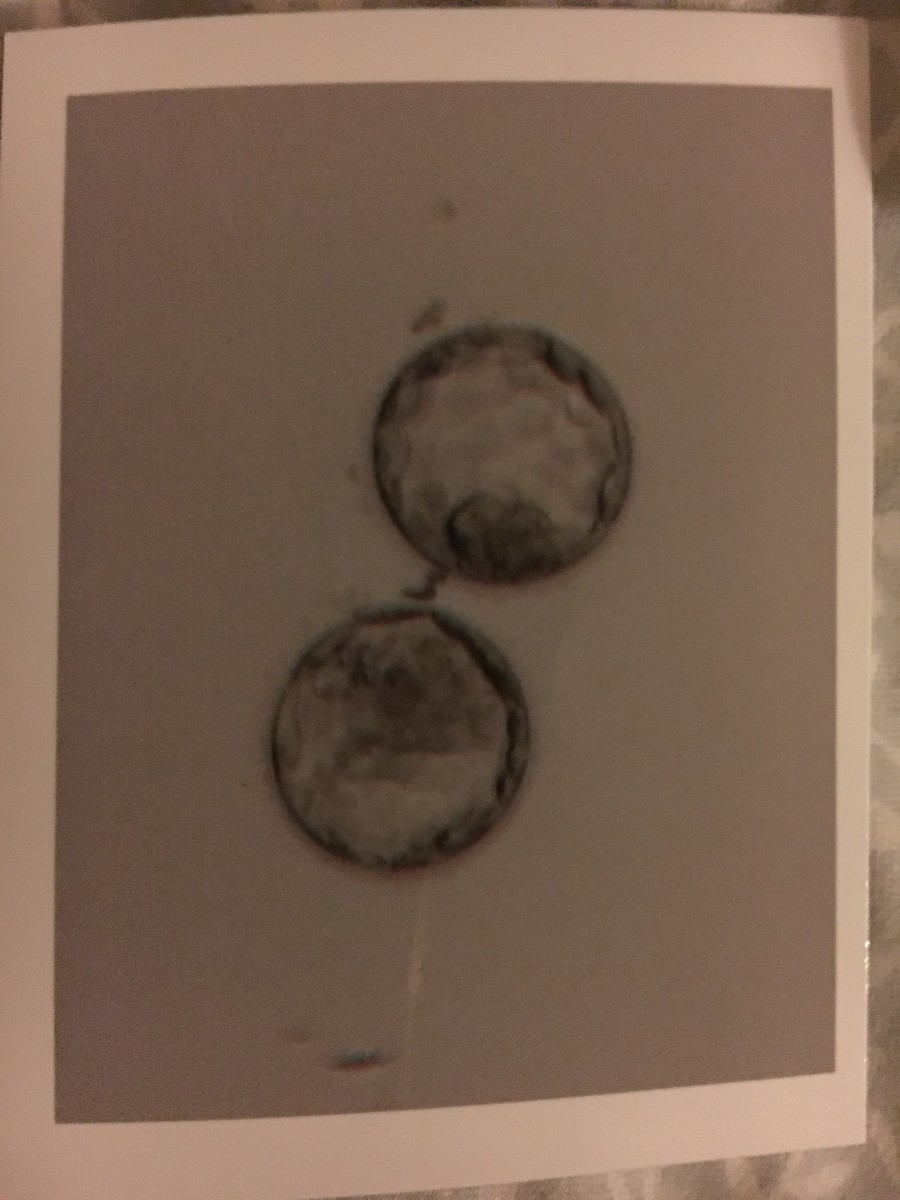My little Day 5 blastocysts which eventually became my precious twin babies.
