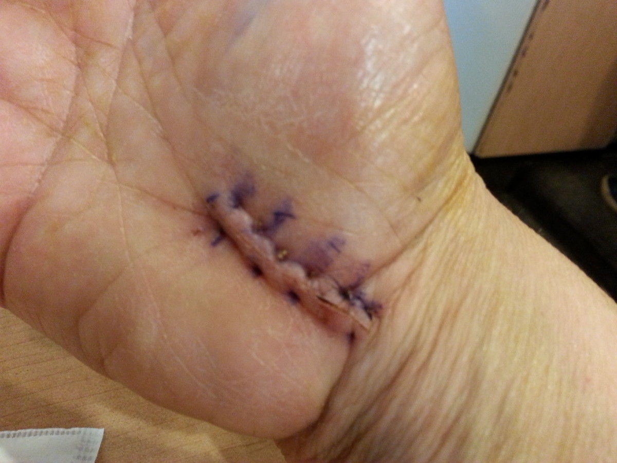 """This is what the wound looked like one week post-op when the bandages came off. It wasn't pretty, but it was a relief to get the giant bandage off my hand. It looks big and scary in the photo, but it's only about 1 1/2"""" long (approximately 3 cm.)"""