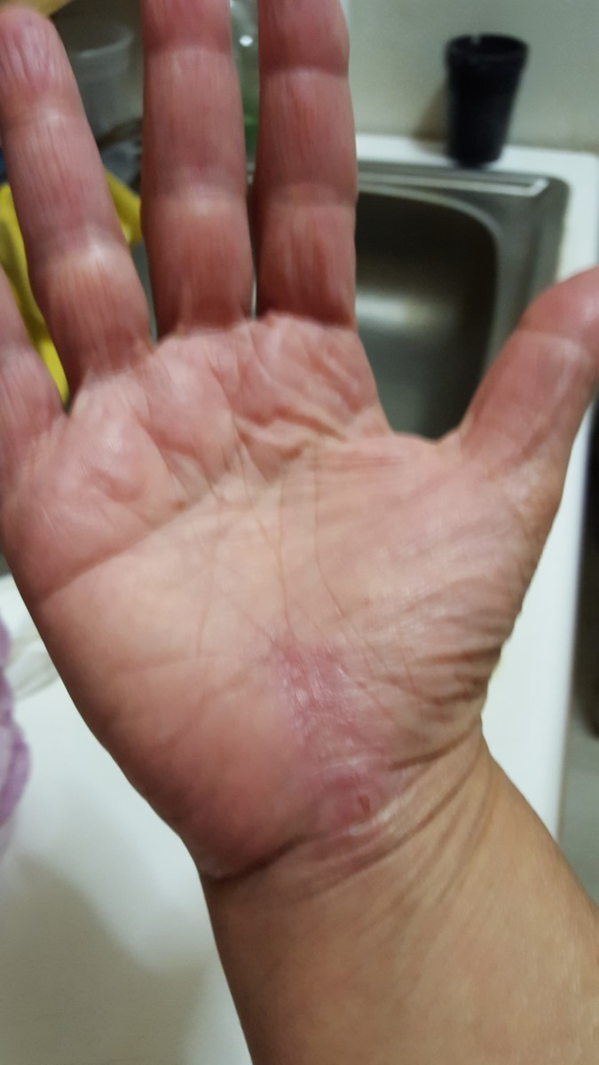 About a month after surgery on my right hand. I still have a visible scar, but that faded. I massaged my hand a lot to break up the scar tissue, and used arnica cream to relieve residual pain.