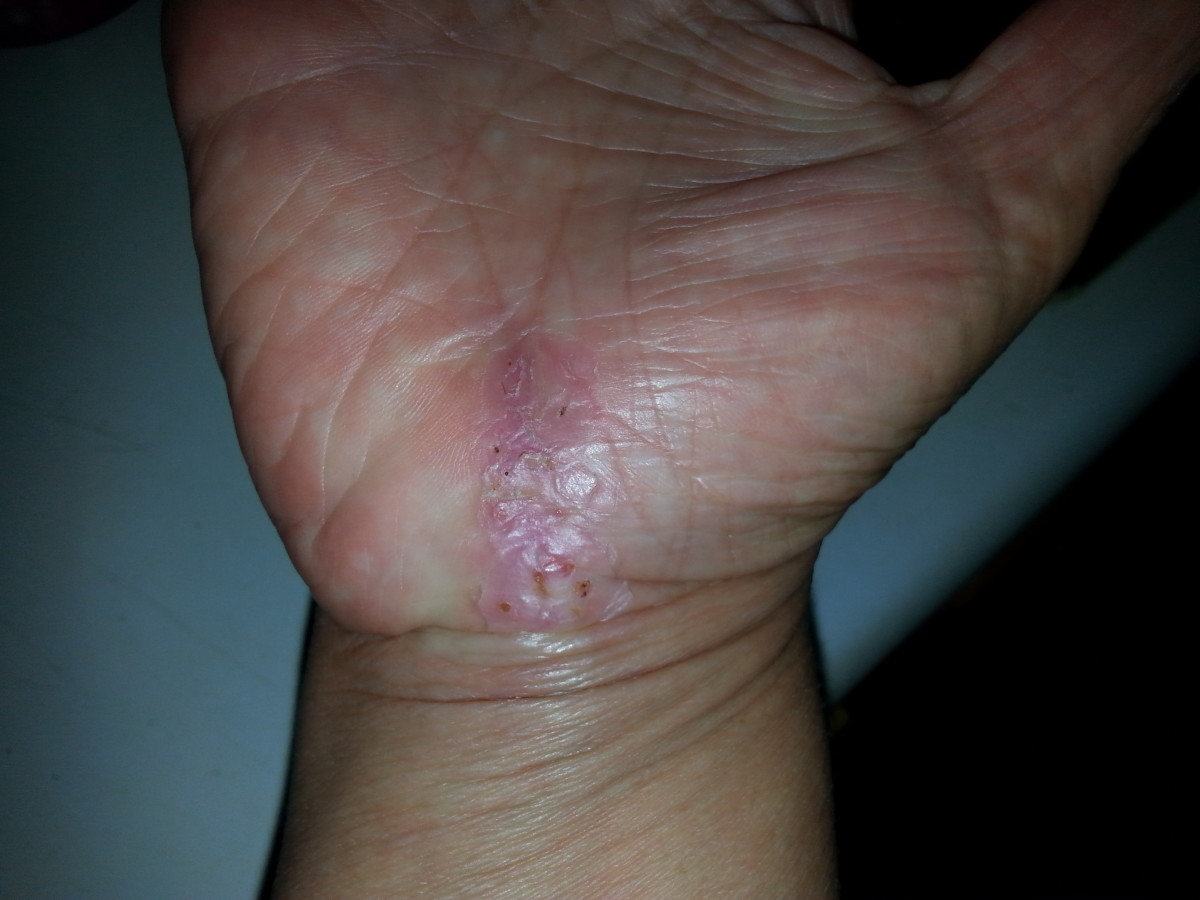 This is my hand approximately three weeks after surgery. The skin is still bumpy and peeling, but definitely on the mend. The pain was fairly constant, but not horrible.
