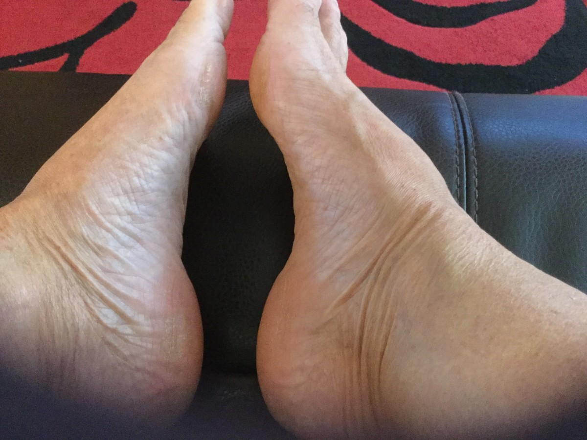 My poor old feet—not a pretty sight.