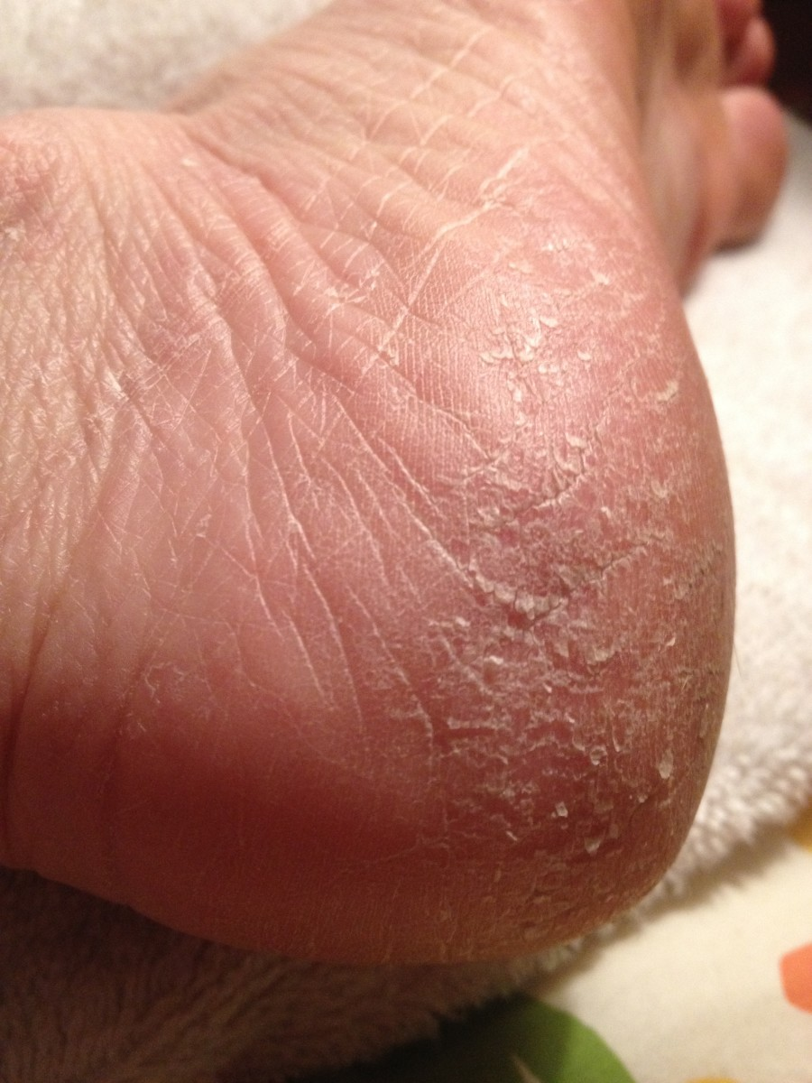 Dry, cracked skin on my heal before Baby Foot treatment.
