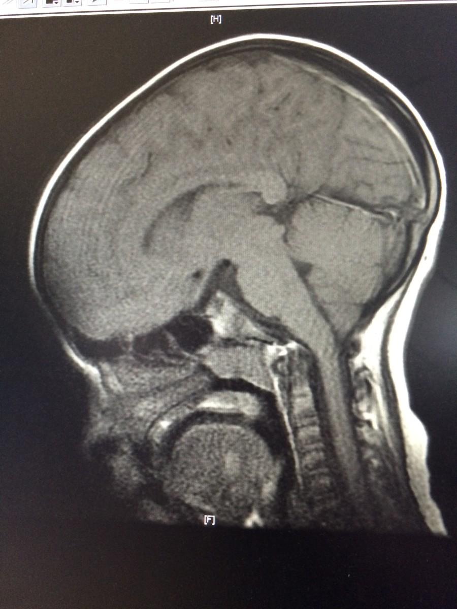 My Son's MRI