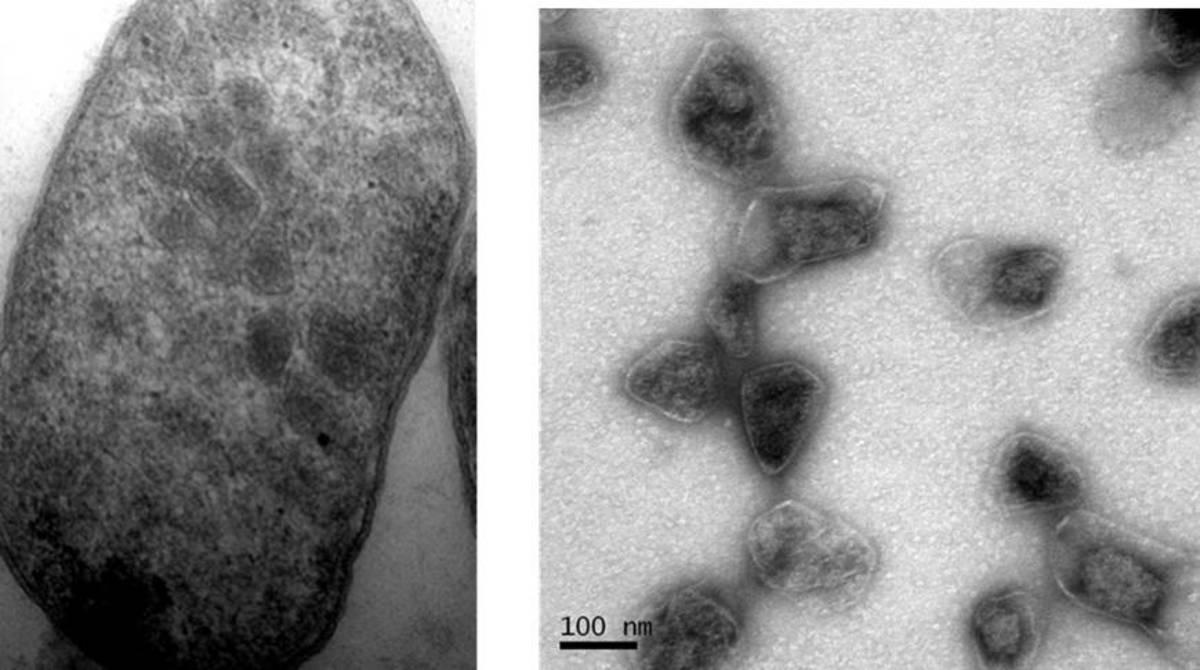 PDU BMCs in Escherichia coli