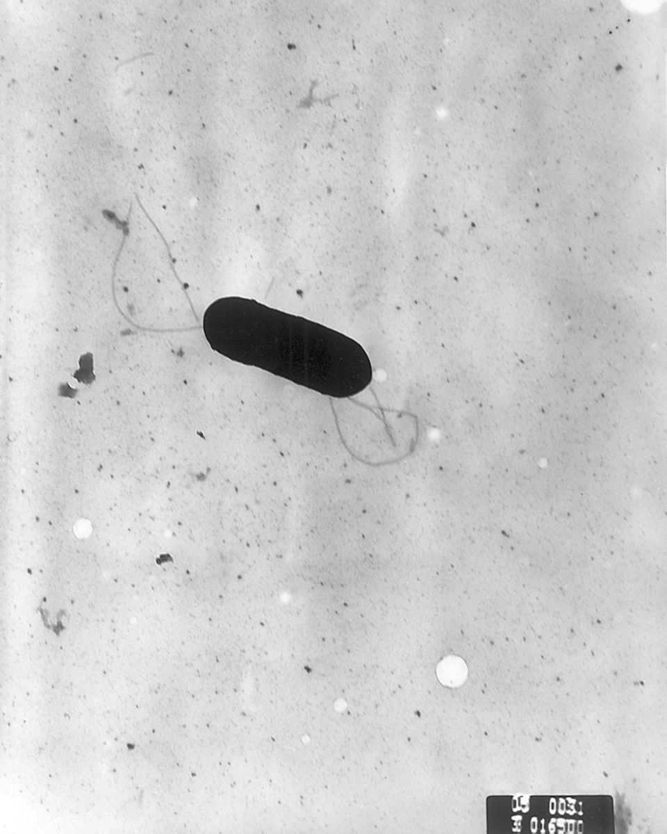 Listeria monocytogenes has multiple flagella on its body..