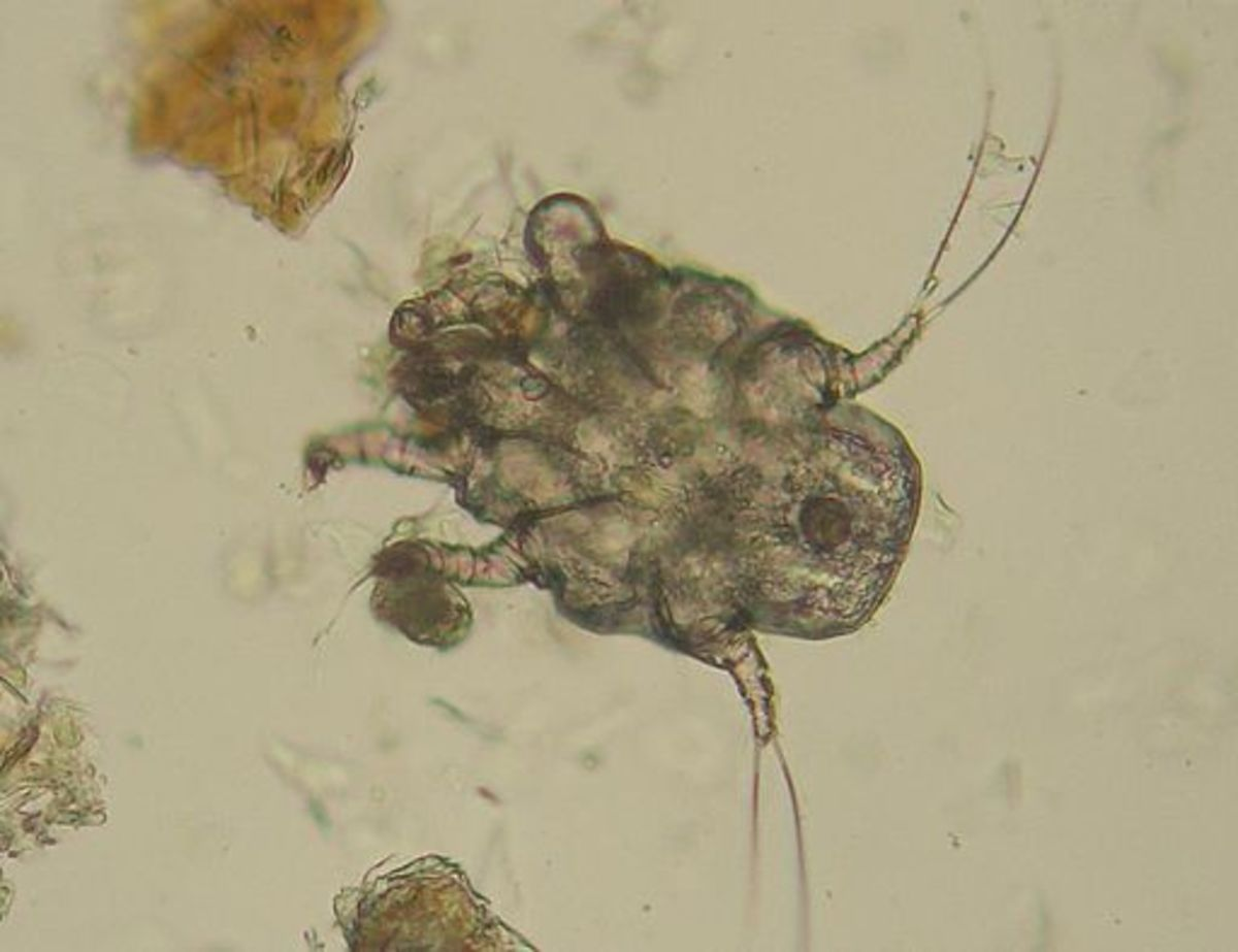 Ear mites could be causing your dog's ear infection.