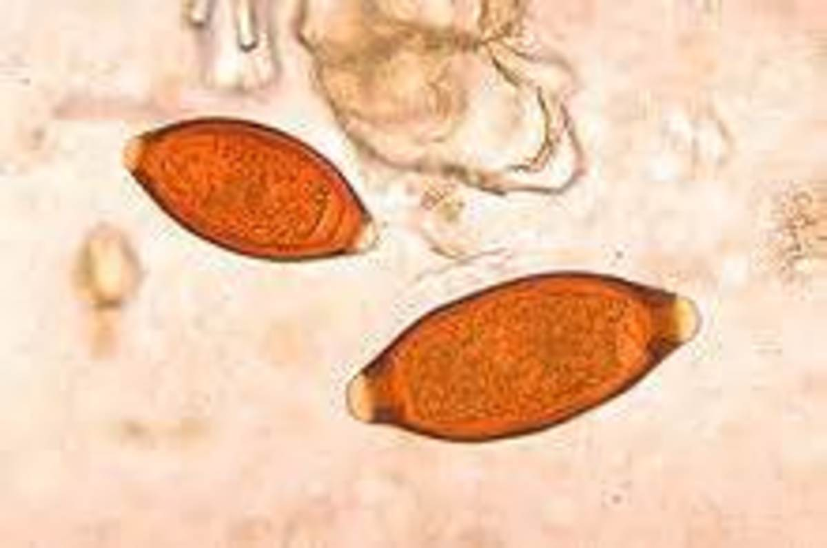 Eggs found in a fecal sample from an infested dog