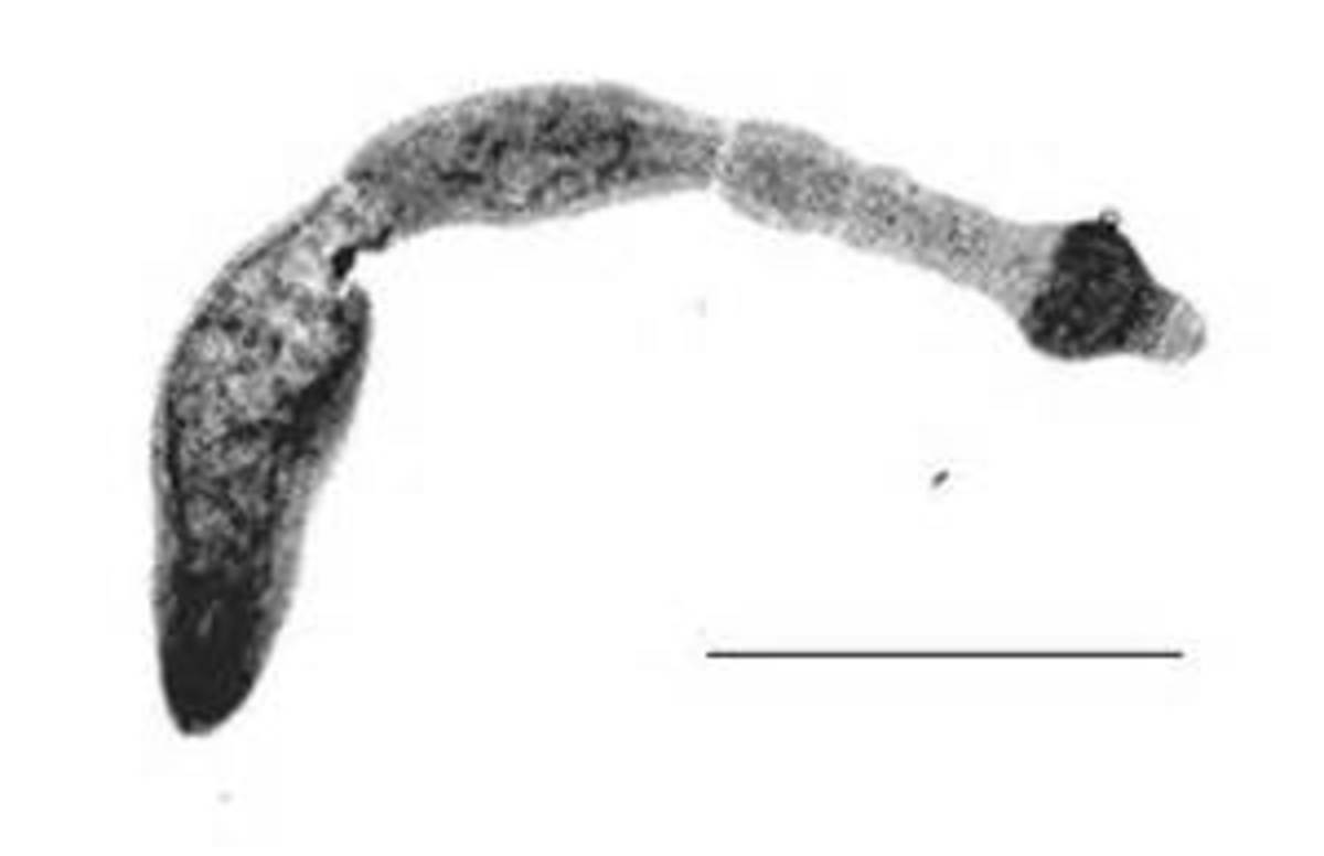 One of the tapeworms capable of infecting humans