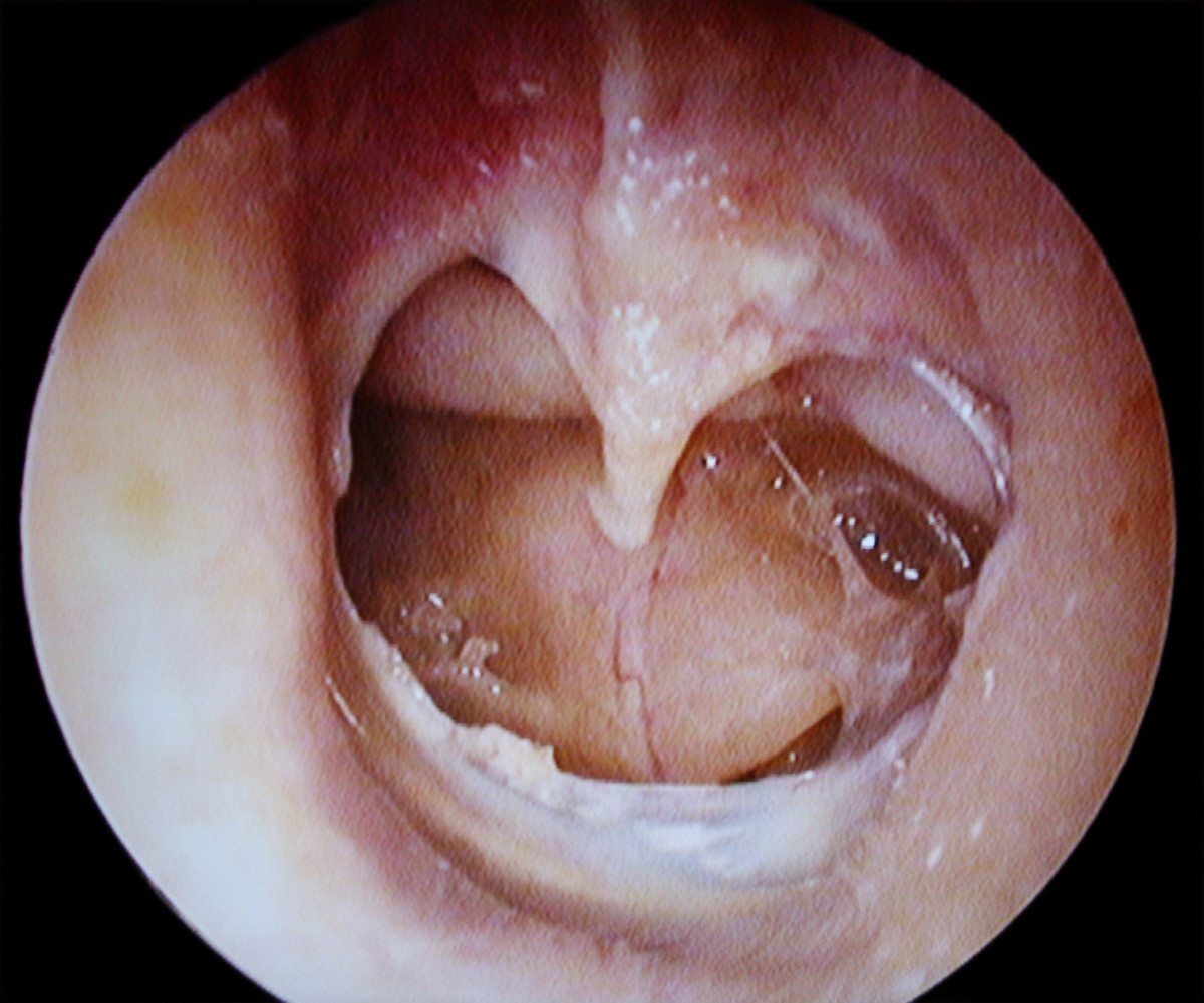 An example of a perforated human eardrum.