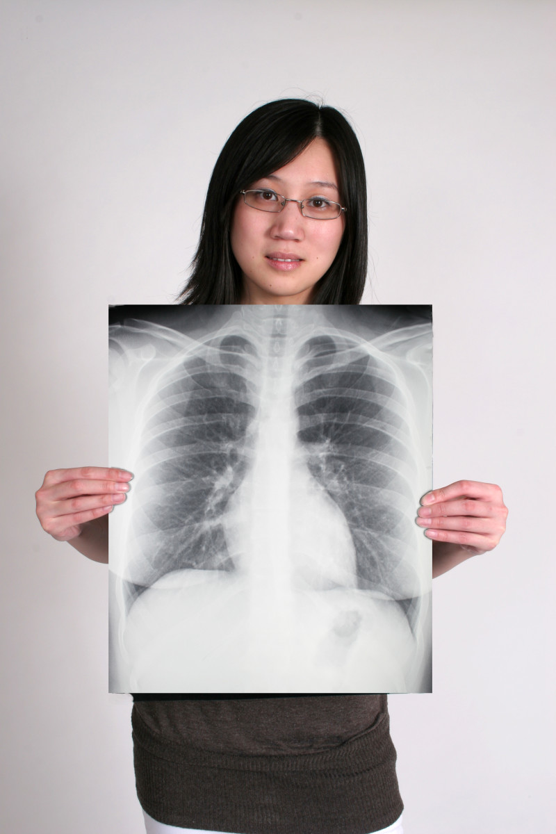 Megaesophagus diagnosis is often made with a chest x-ray.