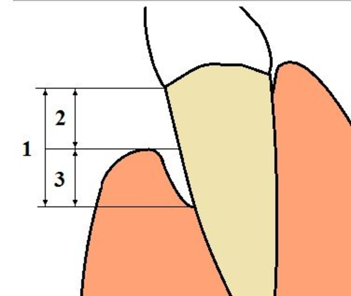 An example of gingival recession. Loss of supporting structure in advanced periodontal disease.