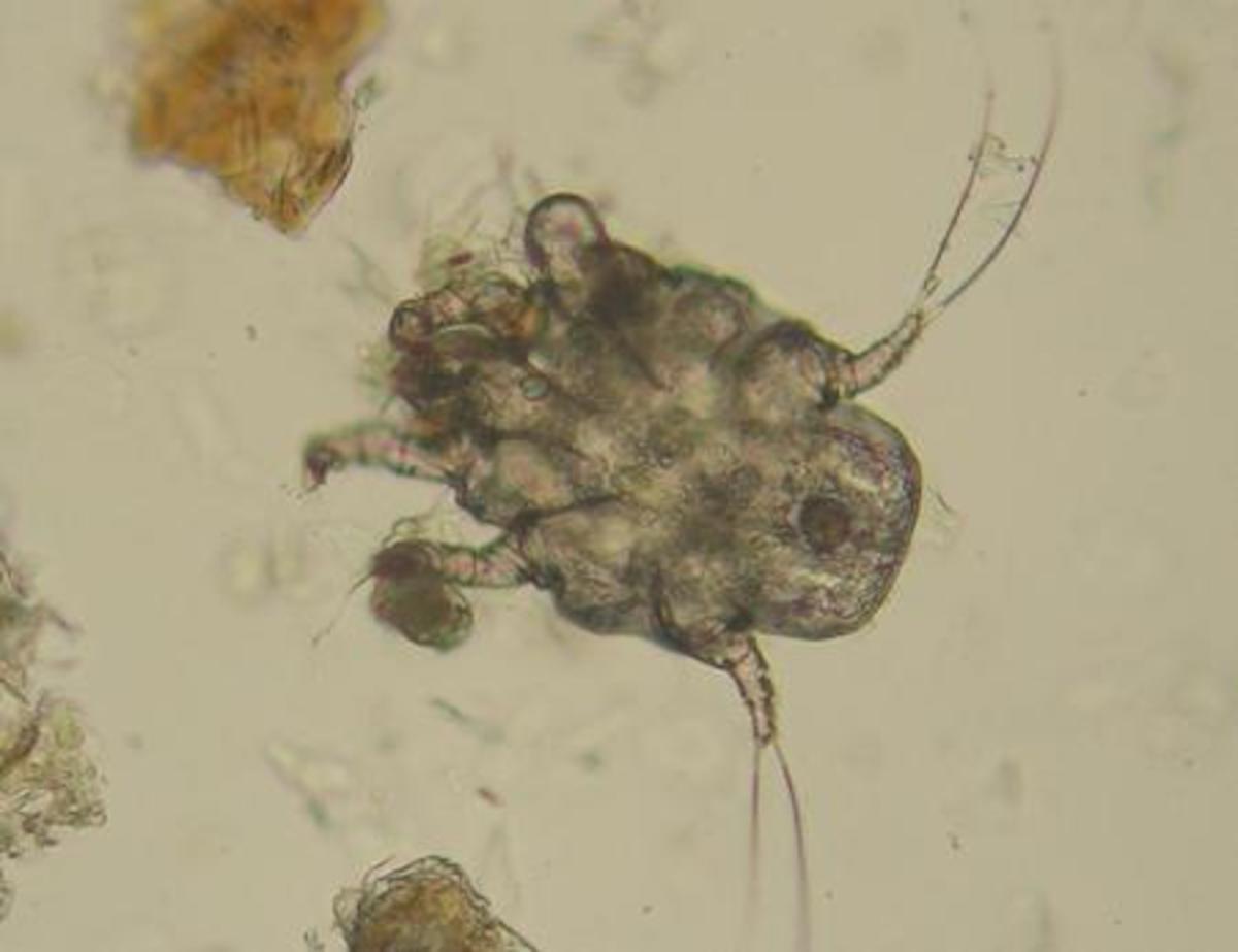 Photo of an ear mite taken at 100x magnification through a microscope (Otodectes cyanotis).