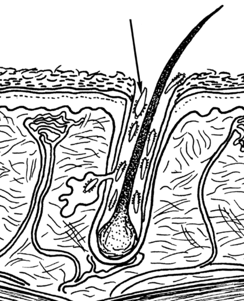 Illustration of Demodex mites feeding within a hair follicle of the host