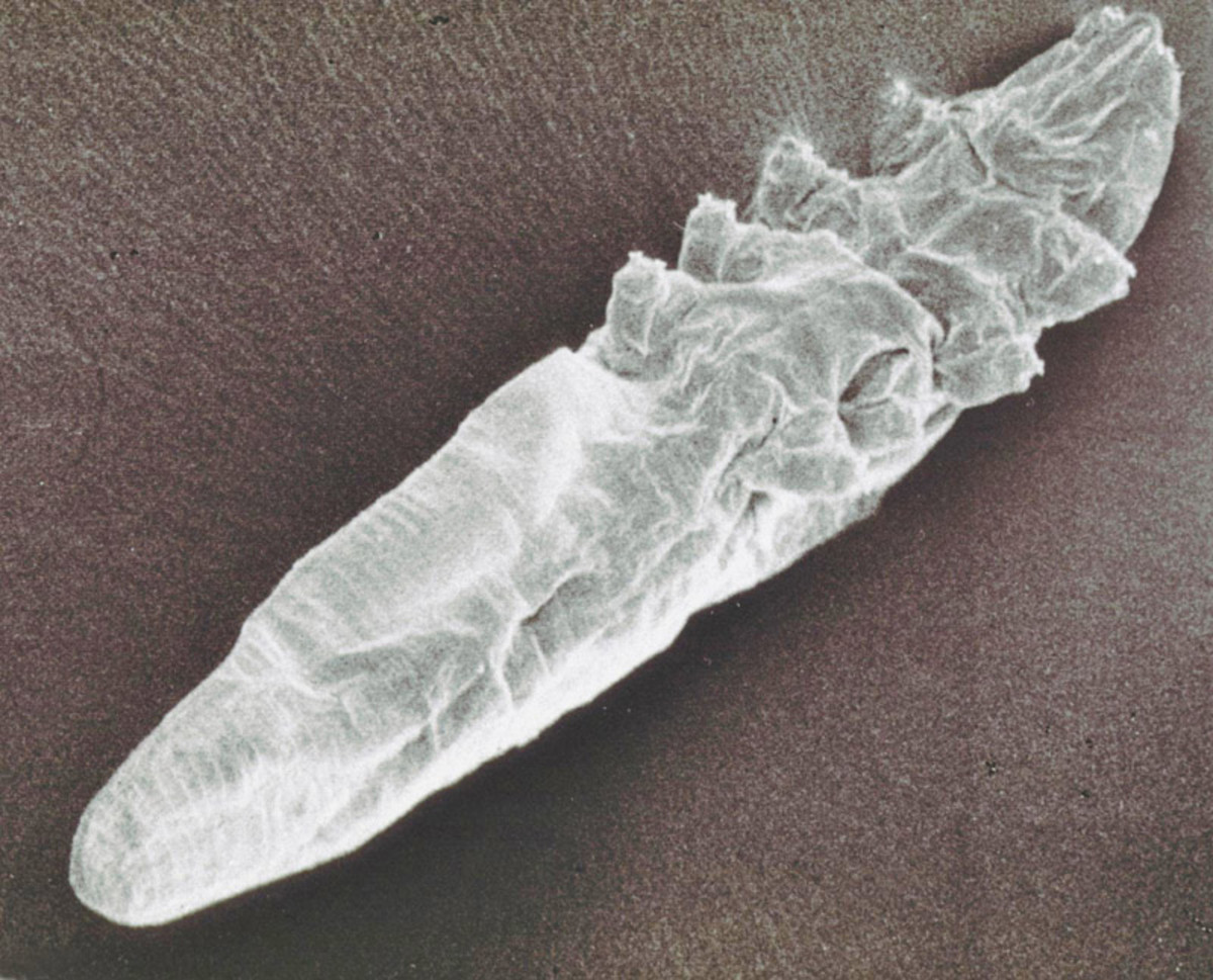 Scanning electron microscope image of a demodex mite.