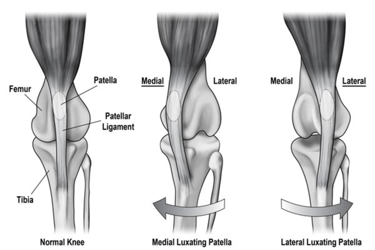 This diagram shows a normal knee compared to two types of patellar luxations.