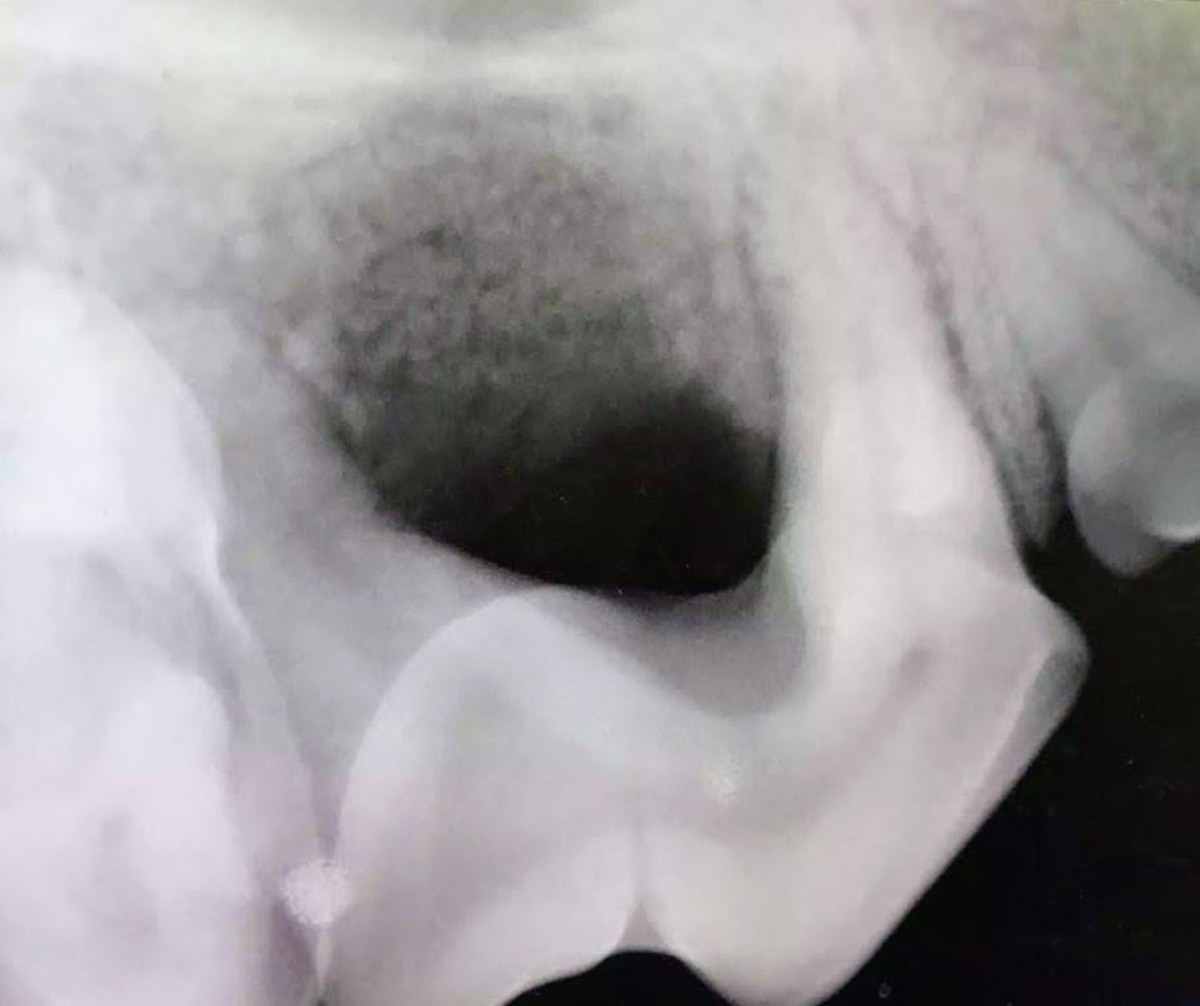 A radiograph of the affected tooth shows major bone loss.
