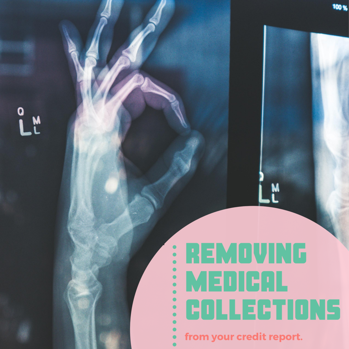 How do I remove medical collections?
