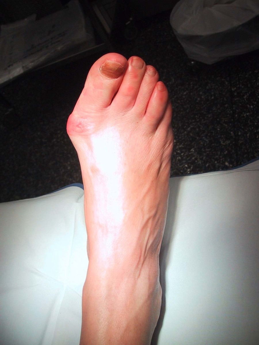 This patient's bunion protrudes and also shows sign of inflammation.