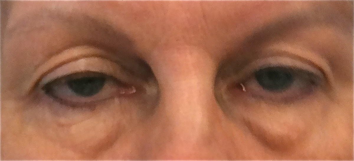 The excess skin in the upper eyelid inhibits this patient's range of vision.  The patient also had elective surgery for fat pads and excess skin below the eyes.