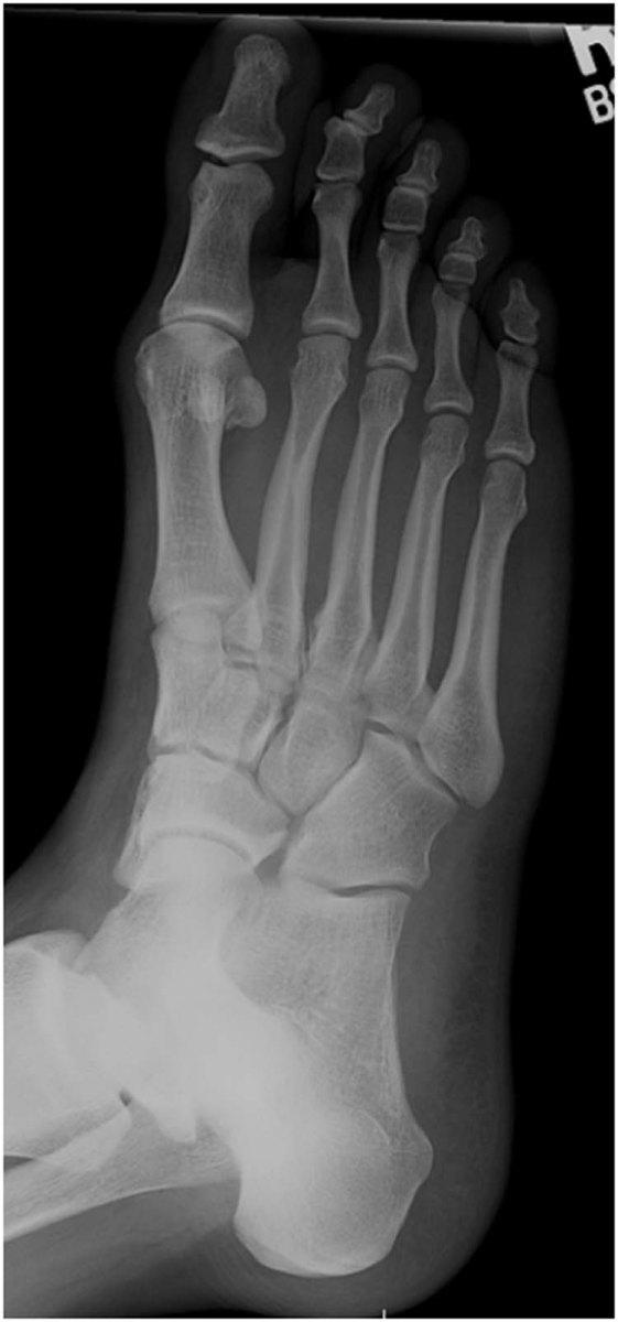 Oblique Foot Radiograph