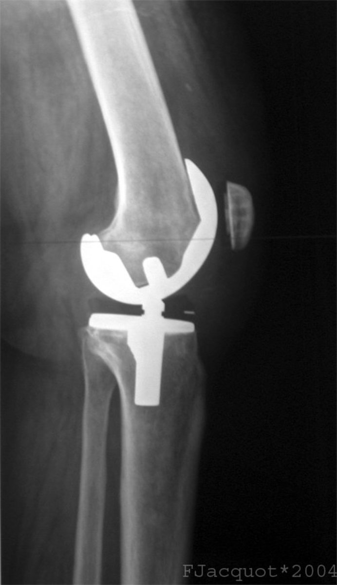 A  lateral view of a total knee prosthesis is a common image if you choose a career in medical radiography.