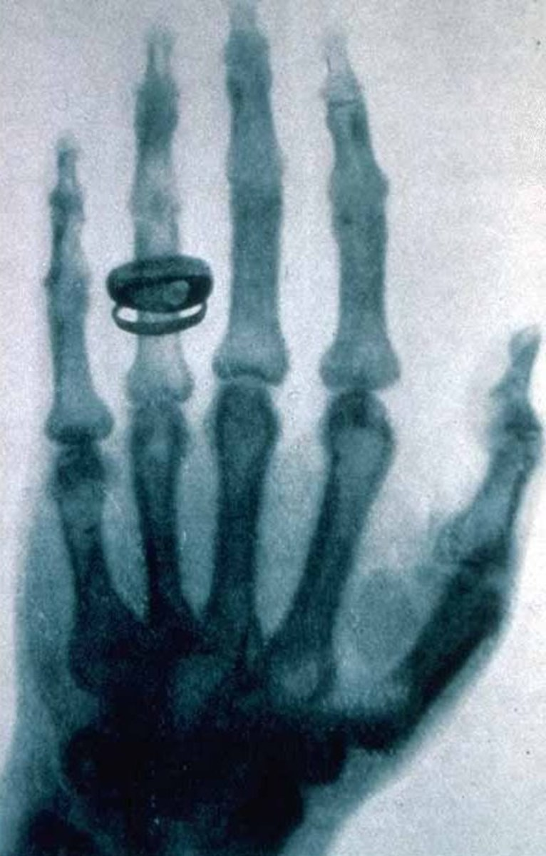 X-ray by the discoverer of x-rays, Wilhem Roentgen.