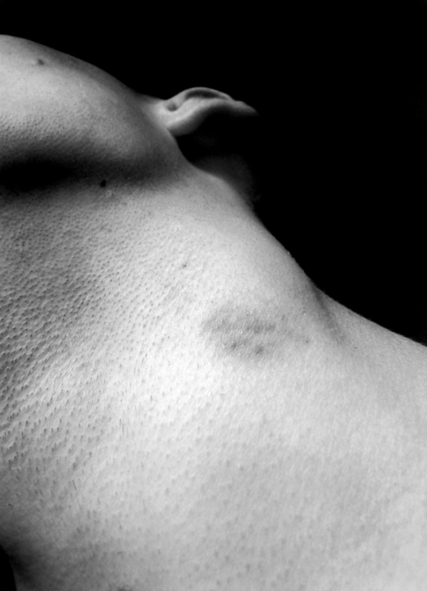 Guy you give how a get to a hickey to The Worst