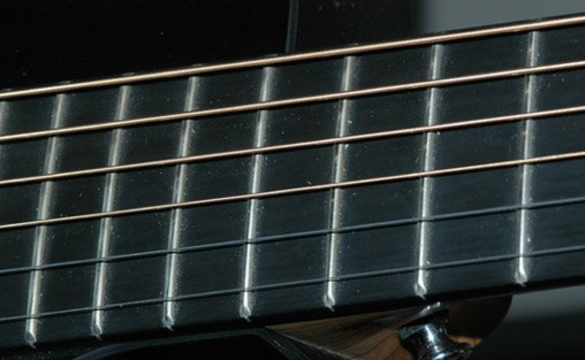 These are the silver bars running across your fretboard. They play a key role in your playing abilities.