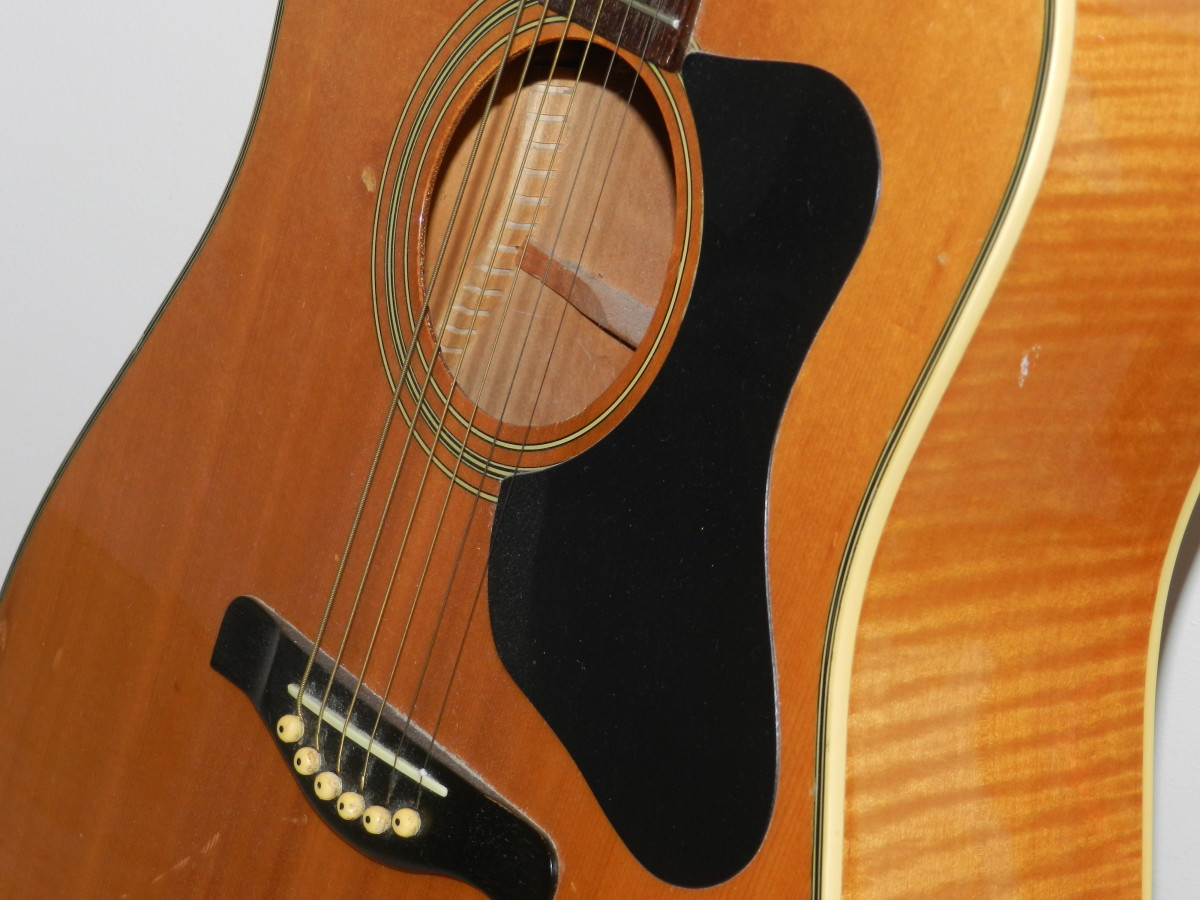 Acoustic guitar bodies consist of the top, back and sides. Note the bracing inside the body cavity.
