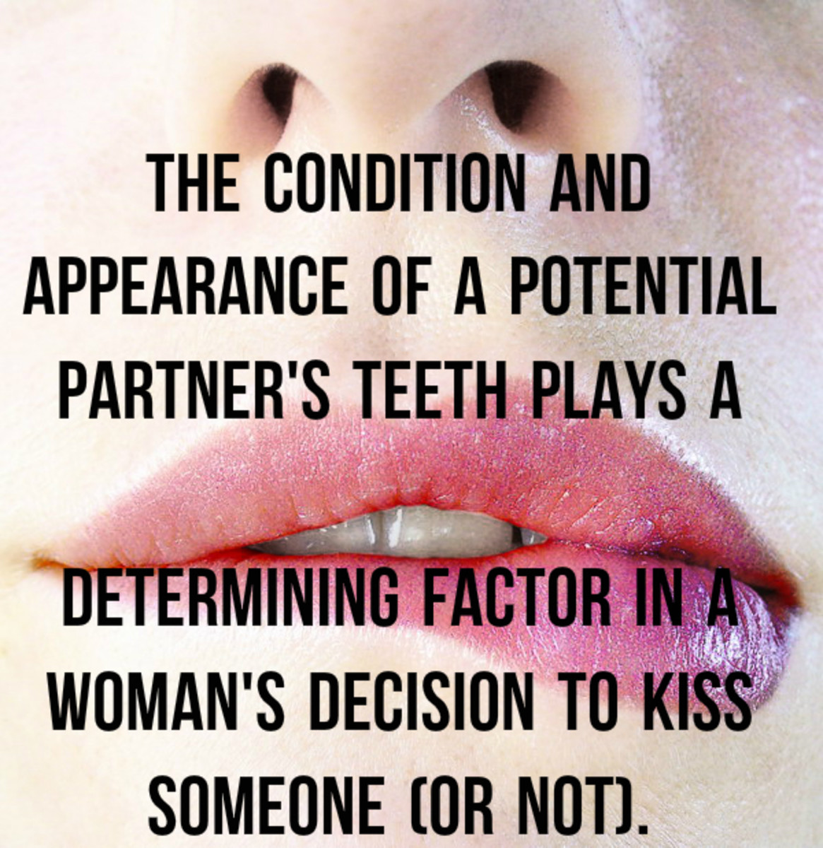 The condition and appearance of a potential partner's teeth plays a determining factor in a woman's decision to kiss someone (or not).