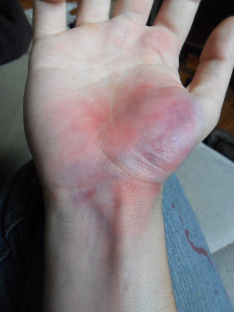Notice how my palm area has the most blue? Try to find a large area like that, if you want to make it look like you got hit with something in that ONE area.