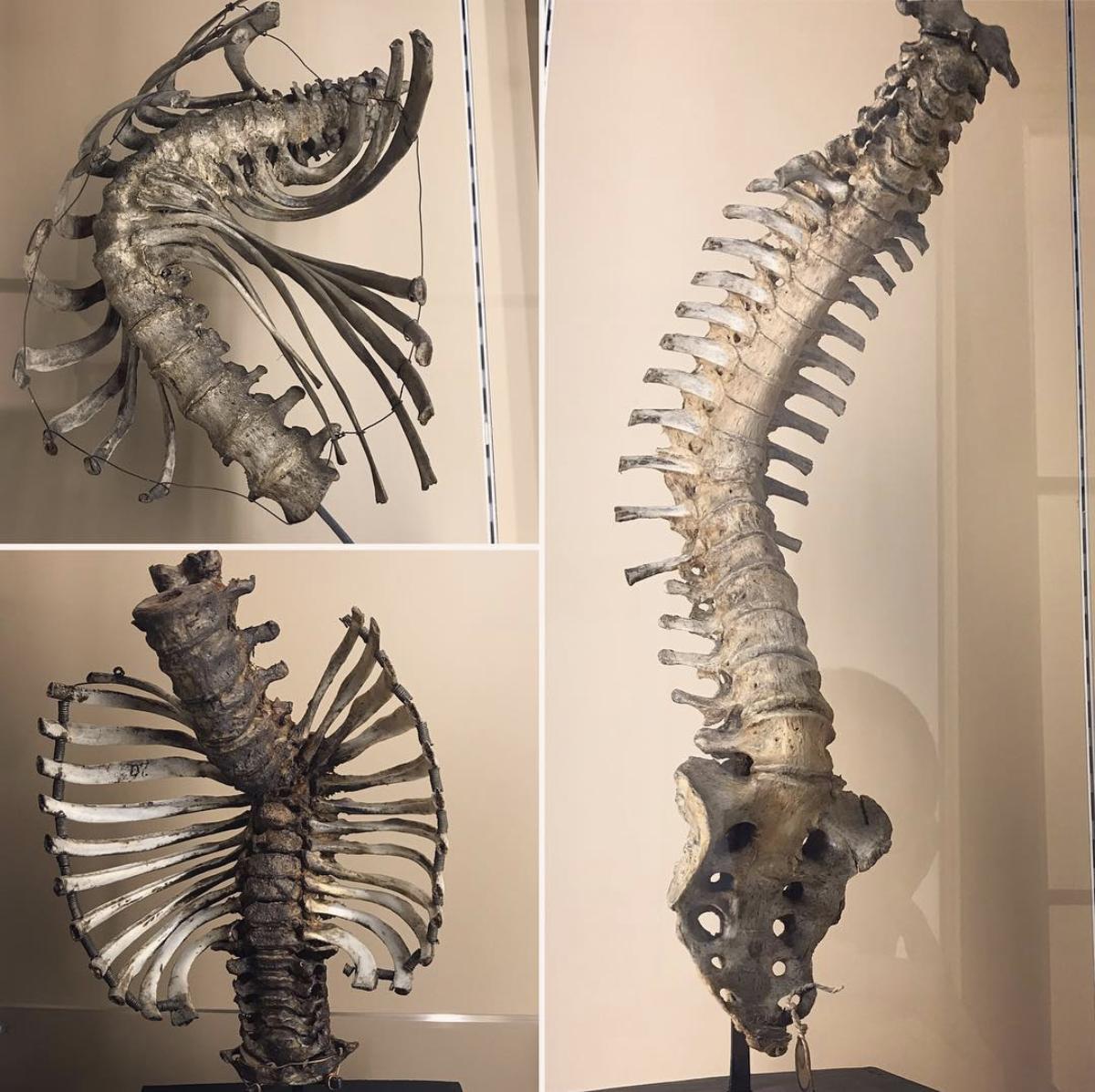 """Seriously f*cked up vertebral columns"""