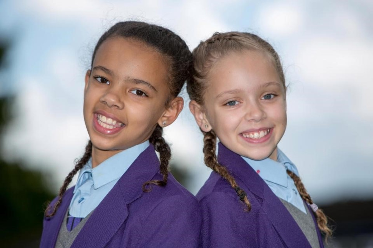 Twins Millie and Marcia Briggs were born one White, one Black.