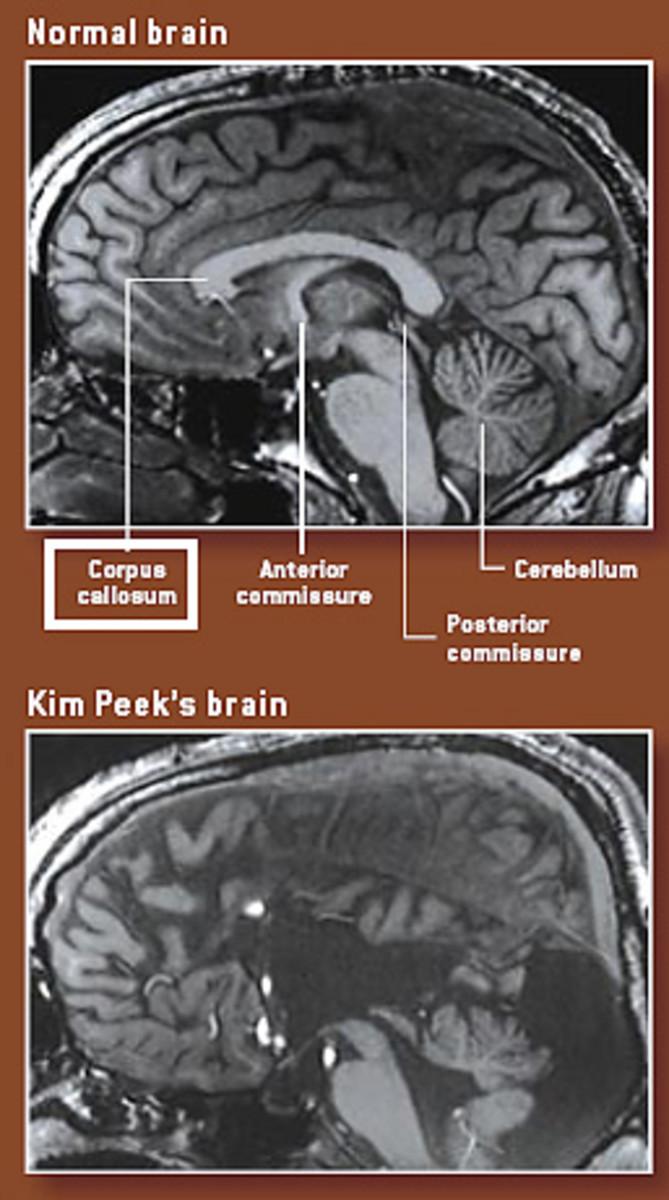Kim Peek's brain