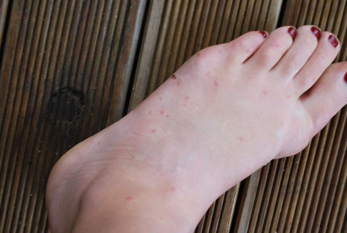 Bed bug bites on my foot