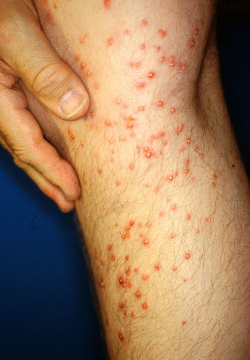 Fire ant bites three days after the encounter.  The stings swell into bumps or white pustules, which are an irritant and itchy.  If scratched, the pustules can become infected or cause scarring.