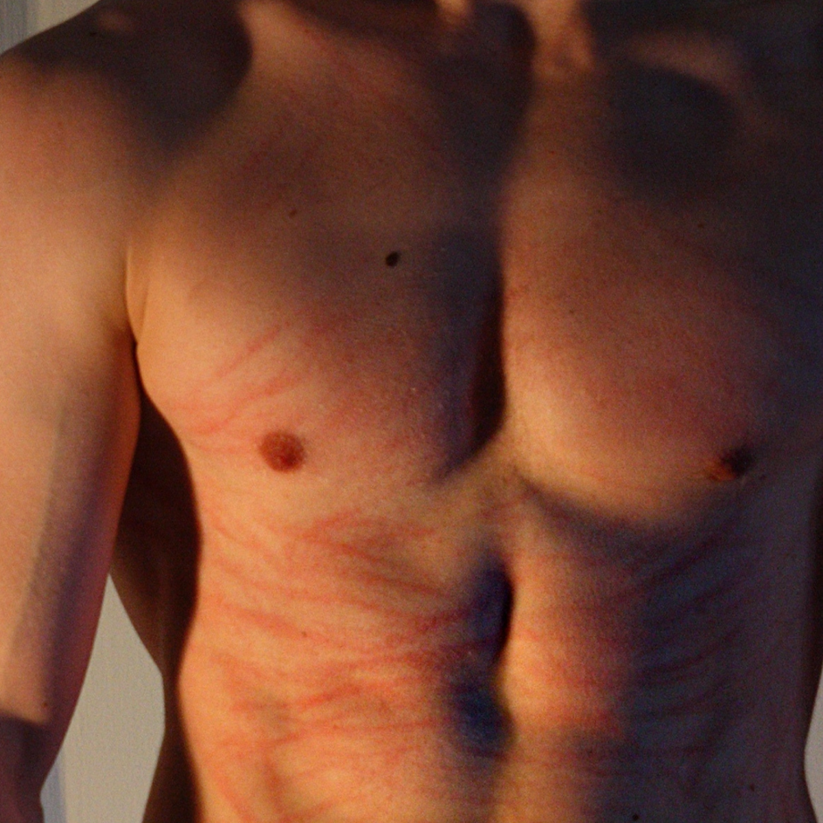 Scratches on the stomach and chest.