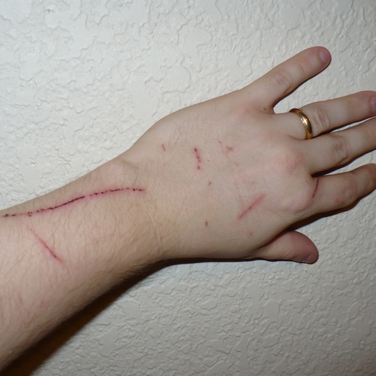 Scratches on the hand.