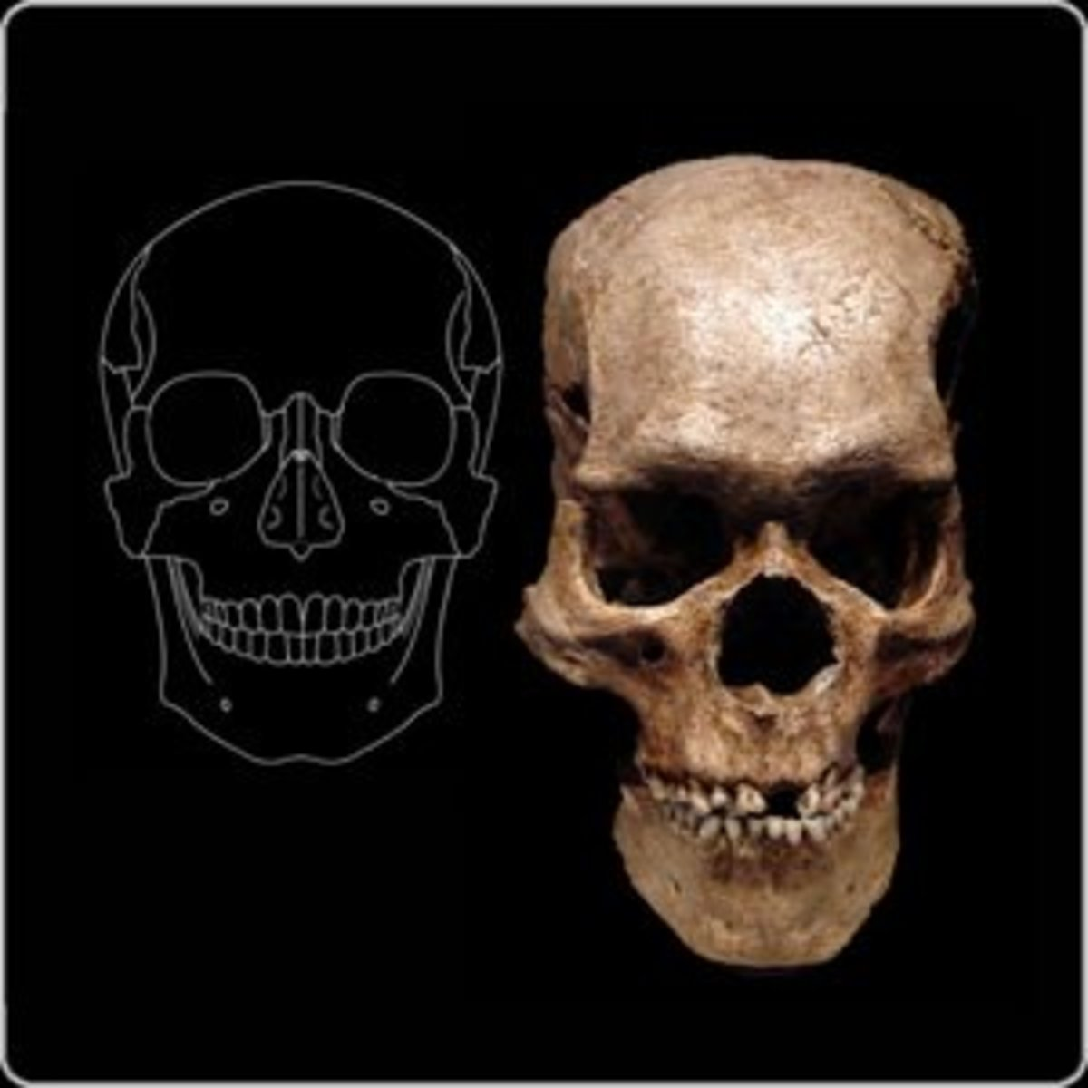 Skull comparison: Was this a giant?