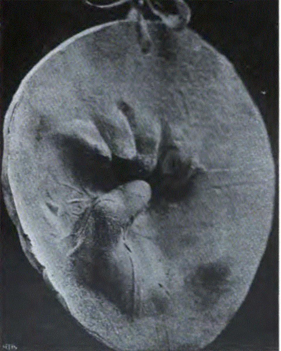 Imprint of a 'spiritic fist'. Genoa, 1901.
