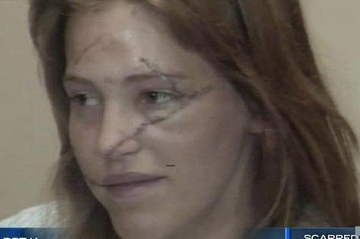 disfigured-face