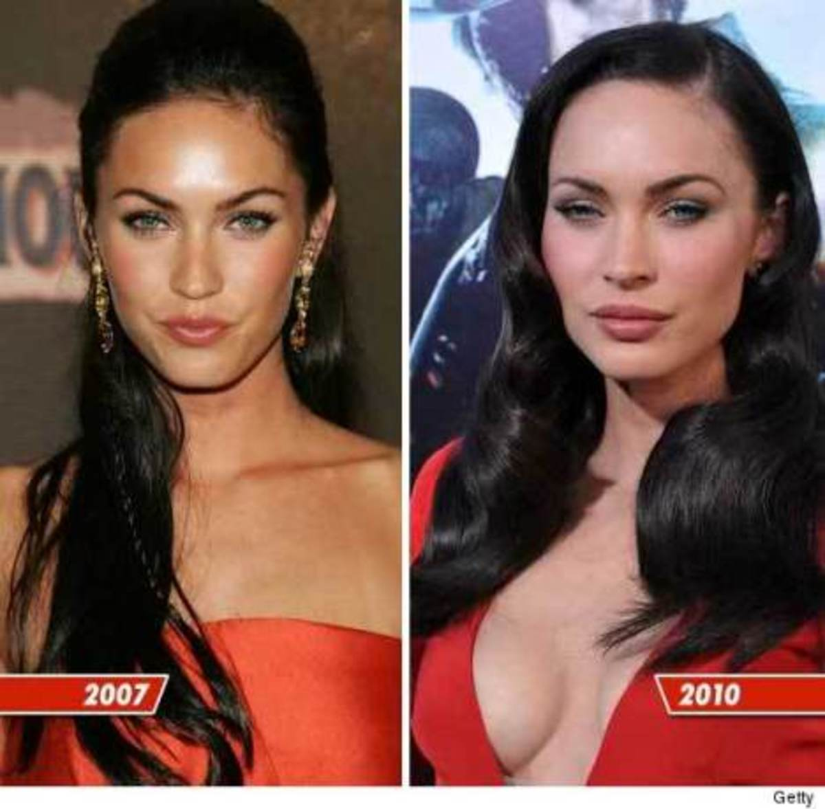 celebrity-plastic-surgery-the-good-and-the-botched