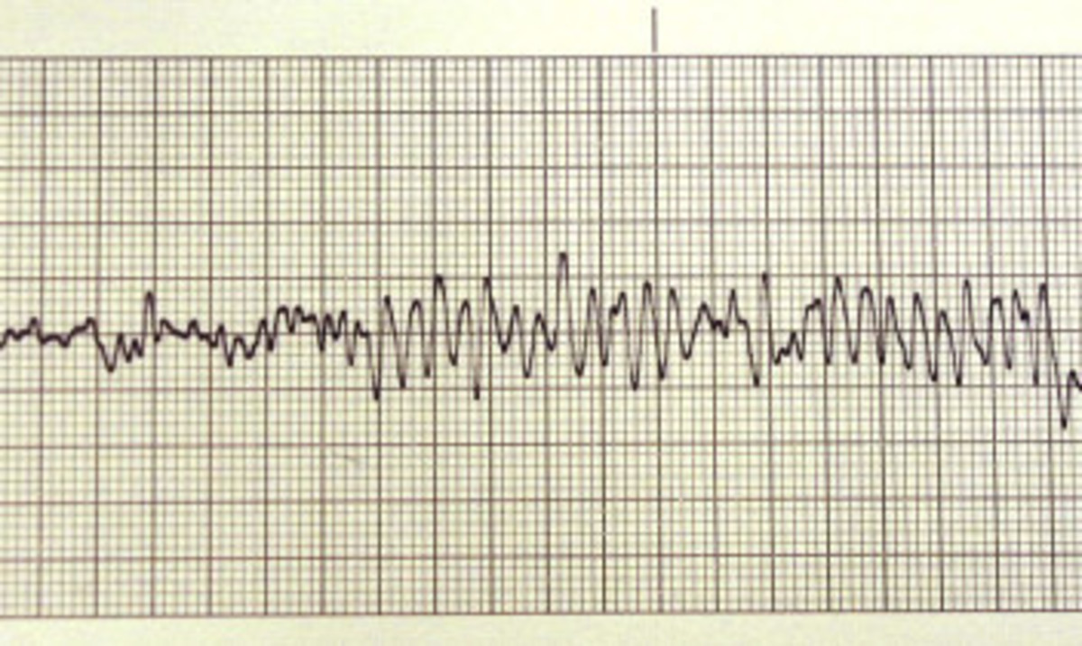 Electroencephalograph line, similar to the one that appears when Karen speaks.