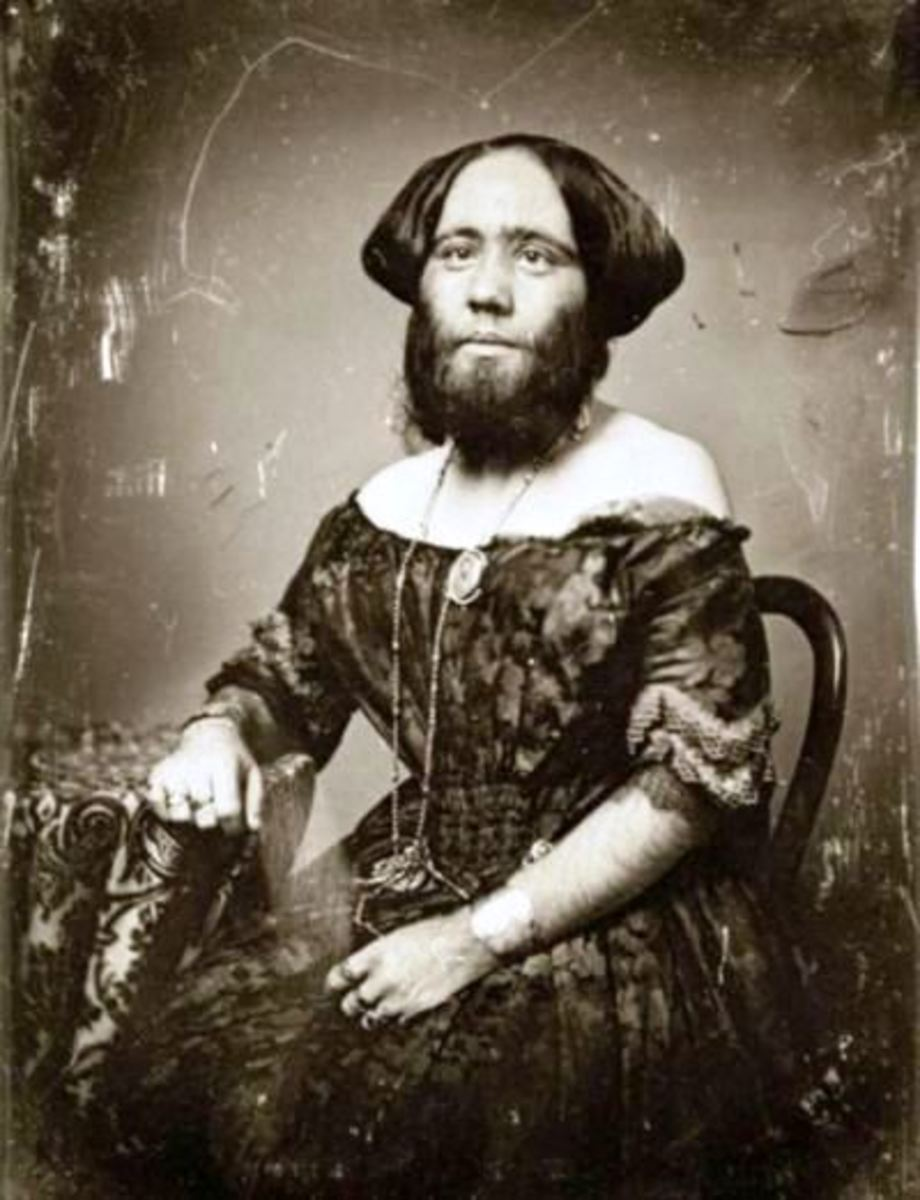 Josephine Clofullia, Also Known As The Bearded Lady