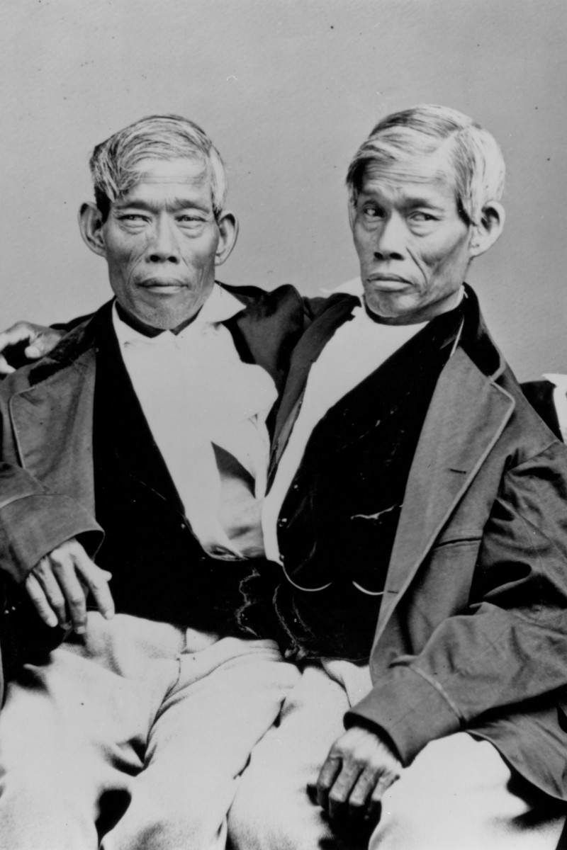 Barnum's Siamese Twins, Chang and Eng Bunker.