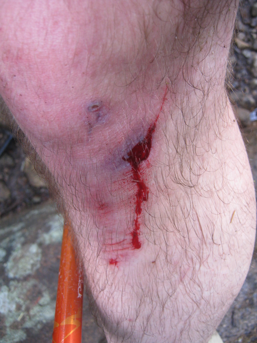 A small scrape from a fall.