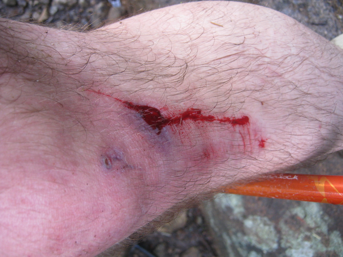 Knowing when enough is enough and when to turn around is an important skills for hikers.  First aid is also important.
