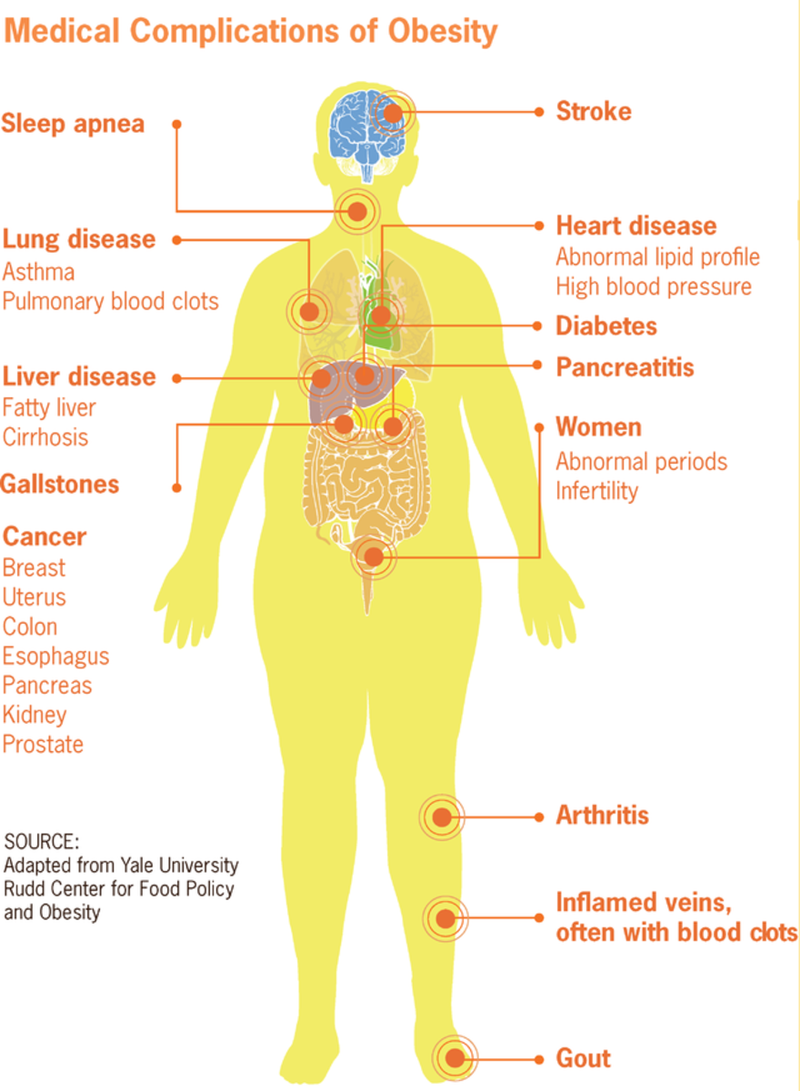 These are some of the conditions that occur when one is overweight. By the time one is obese (one third of body weigh carried in fat), one has entered into a state of serious disease.