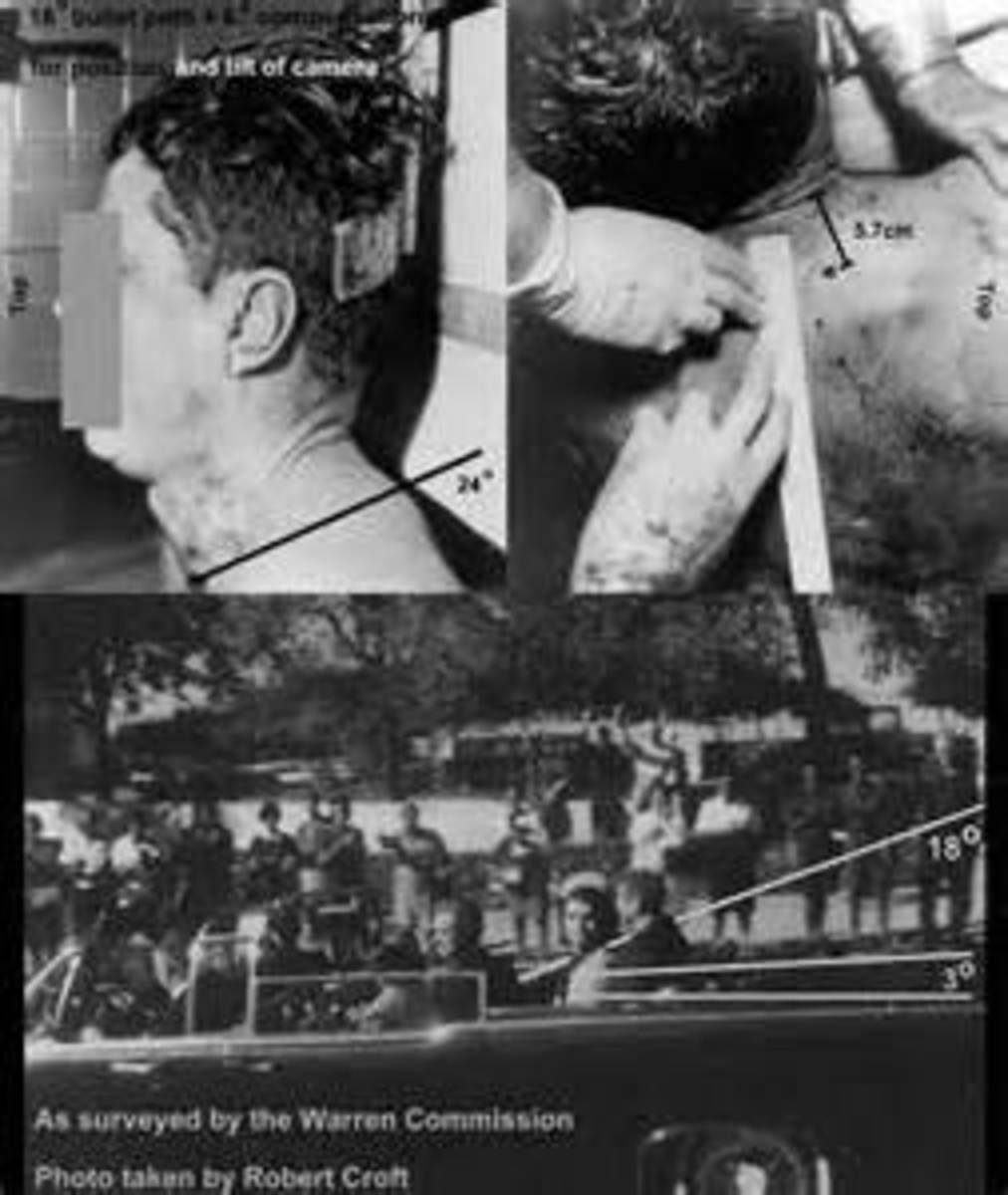 Photos From The Dead Body Of President Kennedy.